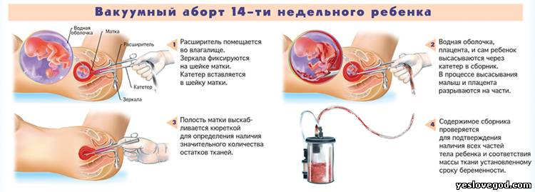Cytotec 200 для прерывания беременности